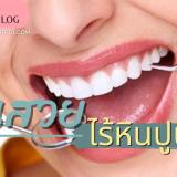 """คนเราเมื่อมีหินปูนก็มักไปพบคุณหมอเพื่อทำการขูดเอาออกนั่นเอง เพื่อให้ได้ฟันขาวสวย ยิ้มสดใสต่อไป แต่รู้ไหมคะว่า """"หินปูน"""" ฟันสวยไร้หินปูน Beauty Blog"""