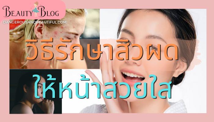 วิธีรักษาสิวผด สิวผดนั้นเกิดจากปัจจัยหลายอย่างเช่น อากาศเมืองไทยที่ร้อนเกินไป แต่งหน้าแล้วมีอาการแพ้แล้วไปแกะทำให้หน้าเห่อขึ้นมา สิวอักเสบ สิวอักเสบ วิธีรักษา