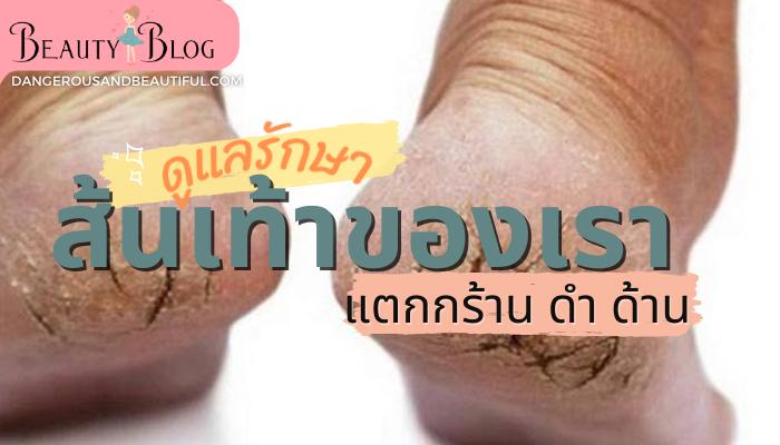 เท้าแตก เท้าด้าน เท้ากร้าน มาดูแลรักษาให้เท้าของเราสวยงามกันดีกว่าค่ะ ทาโลชั่นบำรุงเท้าทุกวันก่อนนอนในทุก ๆ ดูแลเท้าด้าน เท้าแตก เท้ากร้าน beauty Blog